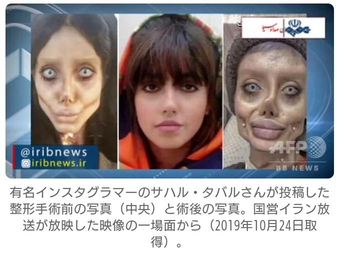【画像】美容整形で容姿をゾンビにした女性(22)を逮捕